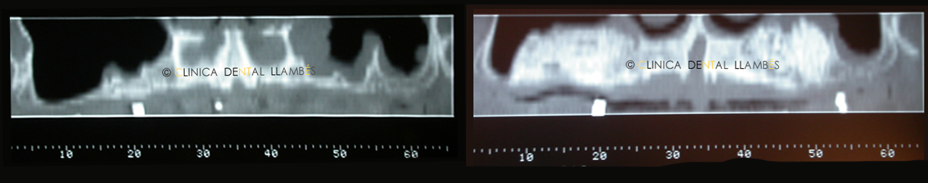 regeneracion-osea-implantes2